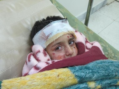 A child in a field hospital in Aleppo, Syria after sustaining injuries in a cluster bomb attack by the Syrian armed forces on a residential area on March 1, 2013.