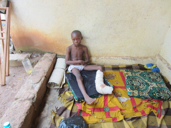 Dieudonné Pinali's left leg was injured by a grenade planted by a Seleka soldier (Photo Credit: Godfrey Byaruhanga).