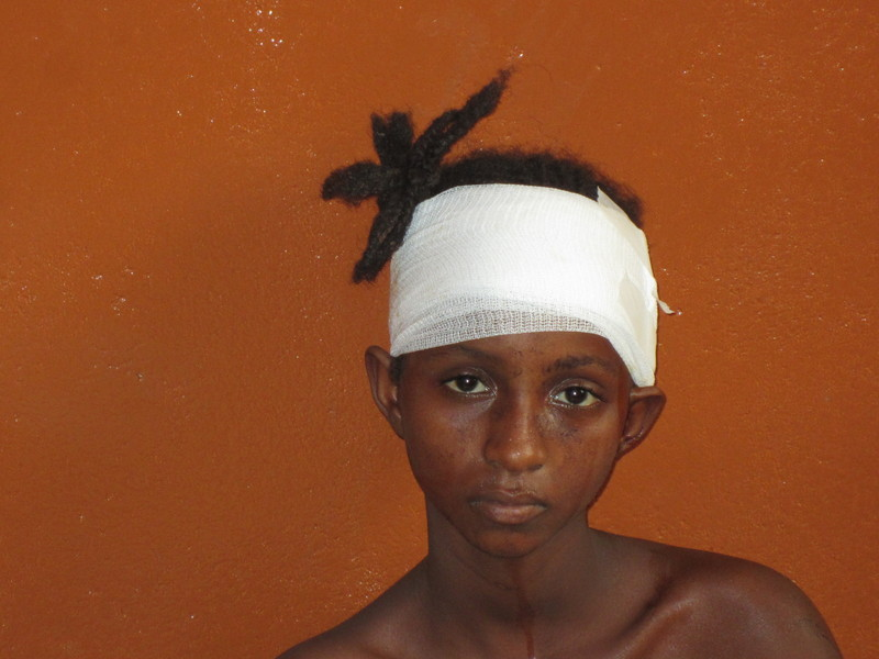 Eleven-year-old Fati suffered deep machete wounds to her head and arm in an attack by anti-balaka militia in Boali. Six people were killed and 20 others were injured in the same attack (Photo Credit: Amnesty International).